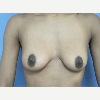 25-34 year old woman treated with Breast Augmentation before 2834719