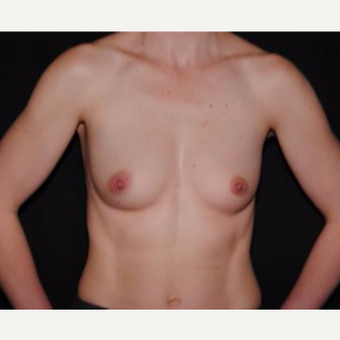 25-34 year old woman treated with Breast Implants before 3593666