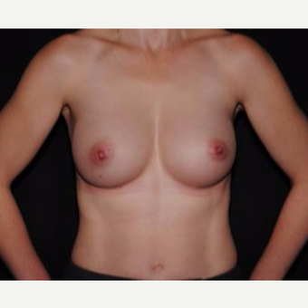 25-34 year old woman treated with Breast Implants after 3593666
