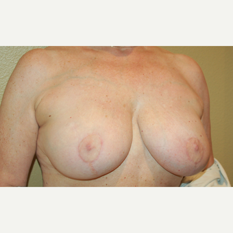 55-64 year old woman treated with Breast Reduction after 3754886