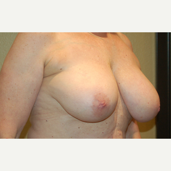 55-64 year old woman treated with Breast Reduction before 3754886