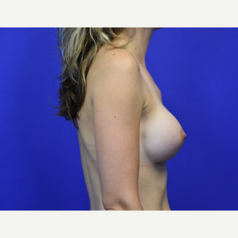 25-34 year old woman treated with Breast Augmentation after 2910207