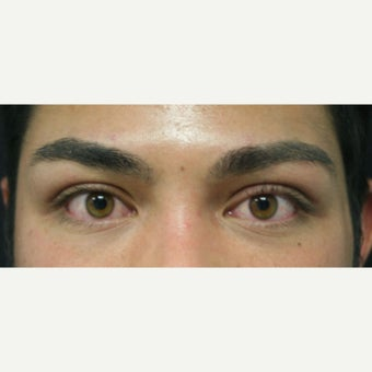 18-24 year old man treated with Eyelid Surgery after 2077866