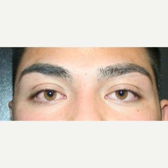 18-24 year old man treated with Eyelid Surgery before 2077866