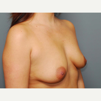 31 y/o Dual Plane Breast Augmentation before 3065922