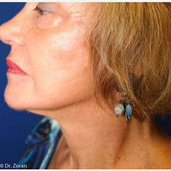 65-74 year old woman treated with Facelift after 3093476
