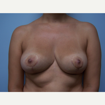 25-34 year old woman treated with Breast Implant Removal and Breast Lift after 3506877