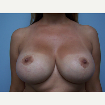 25-34 year old woman treated with Breast Implant Removal and Breast Lift before 3506877