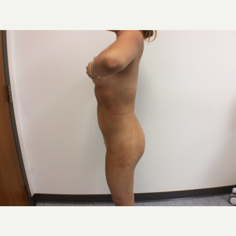 18-24year old woman treated with Fat Transfer after 3590419