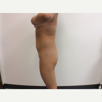 18-24year old woman treated with Fat Transfer before 3590419