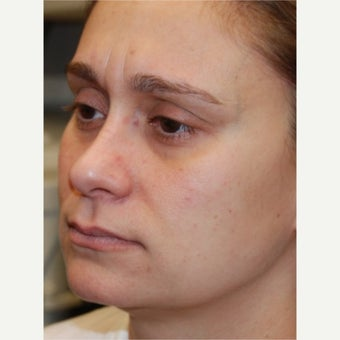 35-44 year old woman treated with Silikon 1000. Three treatments.