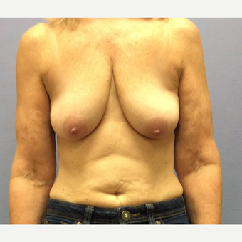 55-64 year old woman treated with Breast Lift with Implants before 3169702