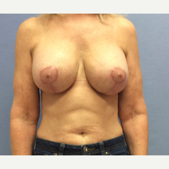 55-64 year old woman treated with Breast Lift with Implants after 3169702