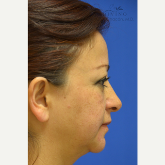 45-54 year old woman treated with Cheek Augmentation before 3421924