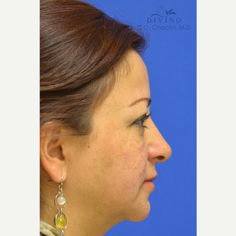 45-54 year old woman treated with Cheek Augmentation after 3421924