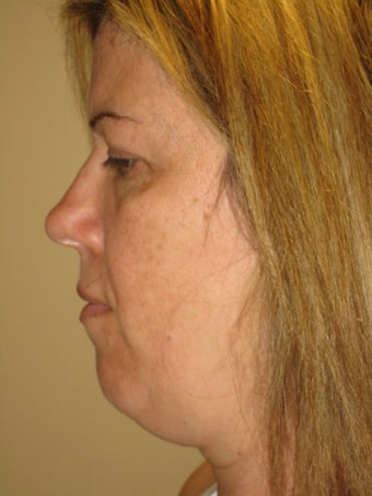 45 year old female before and after SmartLipo of the neck before 626269