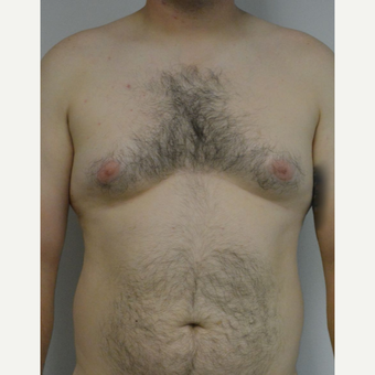 25-34 year old man treated with Male Breast Reduction before 3175391