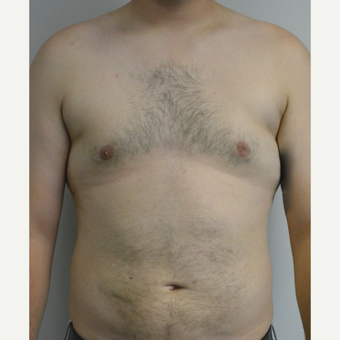 25-34 year old man treated with Male Breast Reduction after 3175391