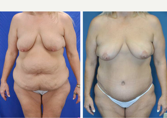 45-54 year old woman treated with Tummy Tuck before 3776415