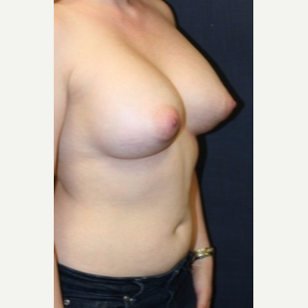 29 year old woman treated with Breast Implants after 3695550