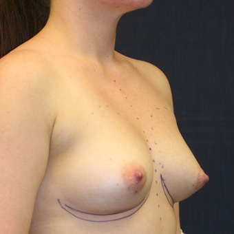 29 year old woman treated with Breast Implants before 3695550