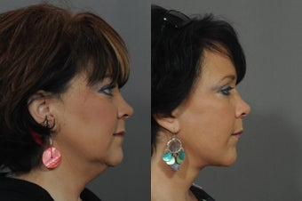 Facelift and Neck Lift 850312