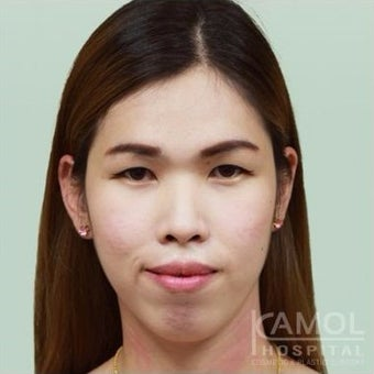 MTF Facial Feminization Surgery before 2704726