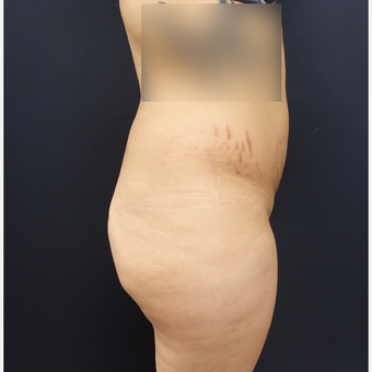 25-34 year old woman treated with 548cc Silicone Butt Implants and 600cc of fat transfer. before 2854213