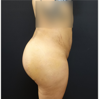 25-34 year old woman treated with 548cc Silicone Butt Implants and 600cc of fat transfer. after 2854213