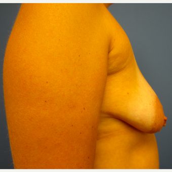 35-44 year old woman treated with Breast Lift with Implants before 3514110