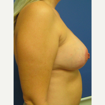 35-44 year old woman treated with Breast Lift with Implants after 3514110