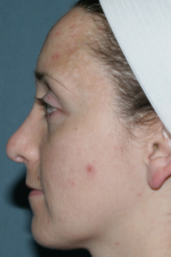 Acne Treatment with Fraxel Repair