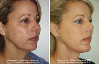 Neck Lift, Neck Lipo, Chin Implant before 212306
