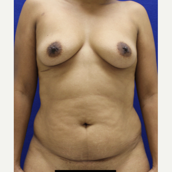 25-34 year old woman treated with Mommy Makeover before 3482463
