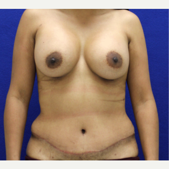 25-34 year old woman treated with Mommy Makeover after 3482463