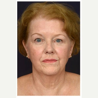 65-74 year old woman treated with SMAS Facelift before 2658556