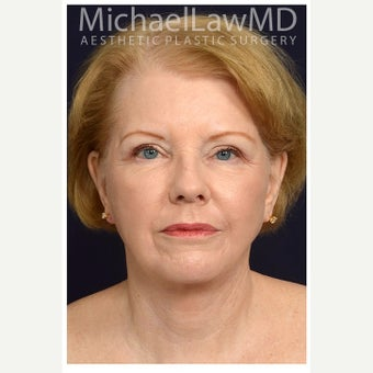 65-74 year old woman treated with SMAS Facelift after 2658556