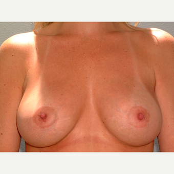 35 y/o Transaxillary Submuscular Breast Augmentation after 3066510