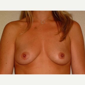 35 y/o Transaxillary Submuscular Breast Augmentation before 3066510