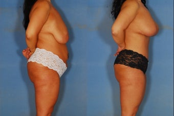 Tummy tuck, liposuction, and breast lift before 381906