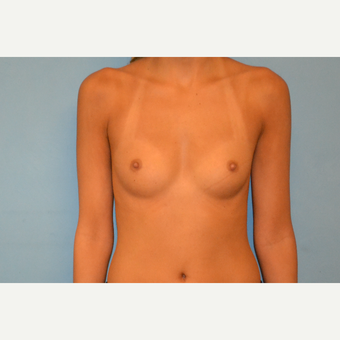 25 year old woman treated with gel breast augmentation before 3265554