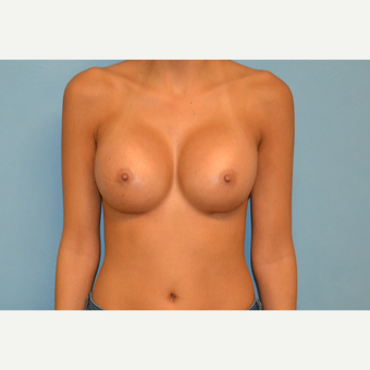 25 year old woman treated with gel breast augmentation after 3265554