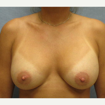25-34 year old woman treated with Breast Augmentation after 3174609