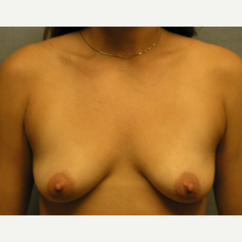 25-34 year old woman treated with Breast Augmentation before 3174609