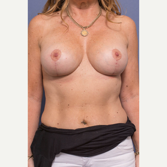 45-54 year old woman treated with Breast Lift with Implants after 3739077