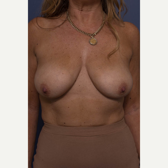 45-54 year old woman treated with Breast Lift with Implants before 3739077