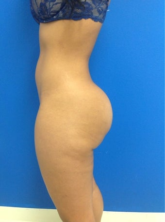 Buttock Implants with Fat grafting