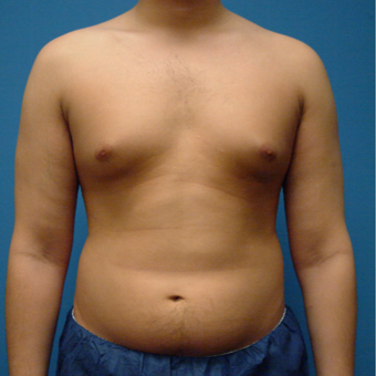 28 year old man treated with Liposuction before 3206027