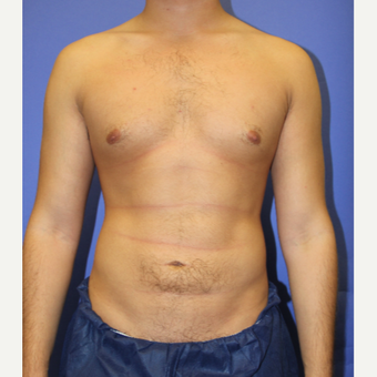 28 year old man treated with Liposuction after 3206027