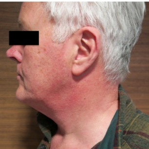 55-64 year old man treated with Neck Lift before 3070042